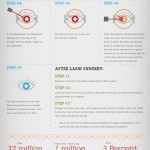 Infographic on Lasik Treatment