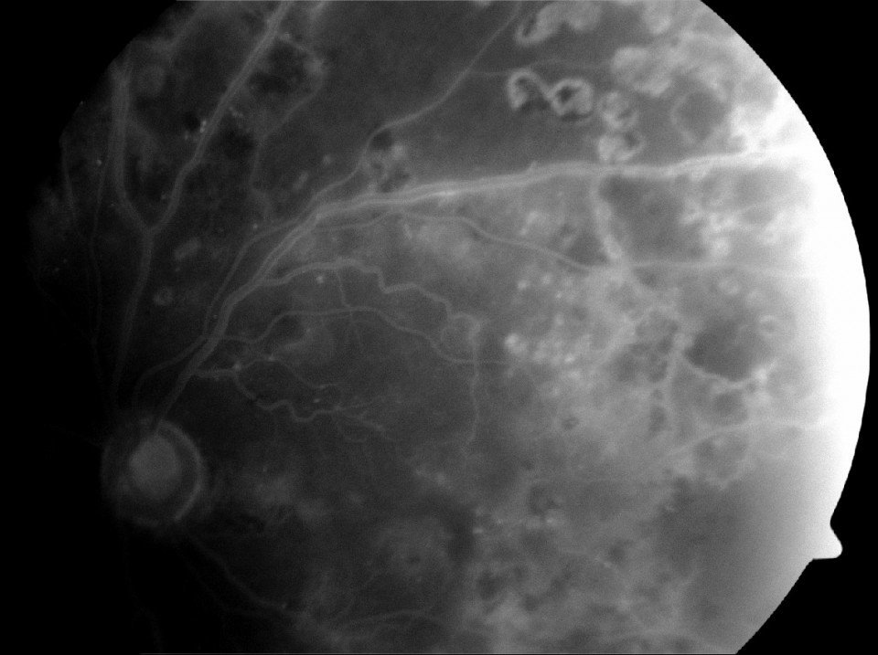 Intravenous Fluorescein Angiography Diabetes