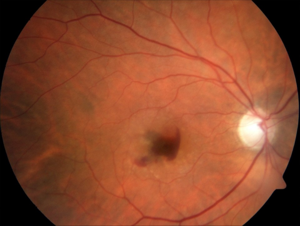 Intravenous Fluorescein Angiography of Age Related Macular Degeneration Wet