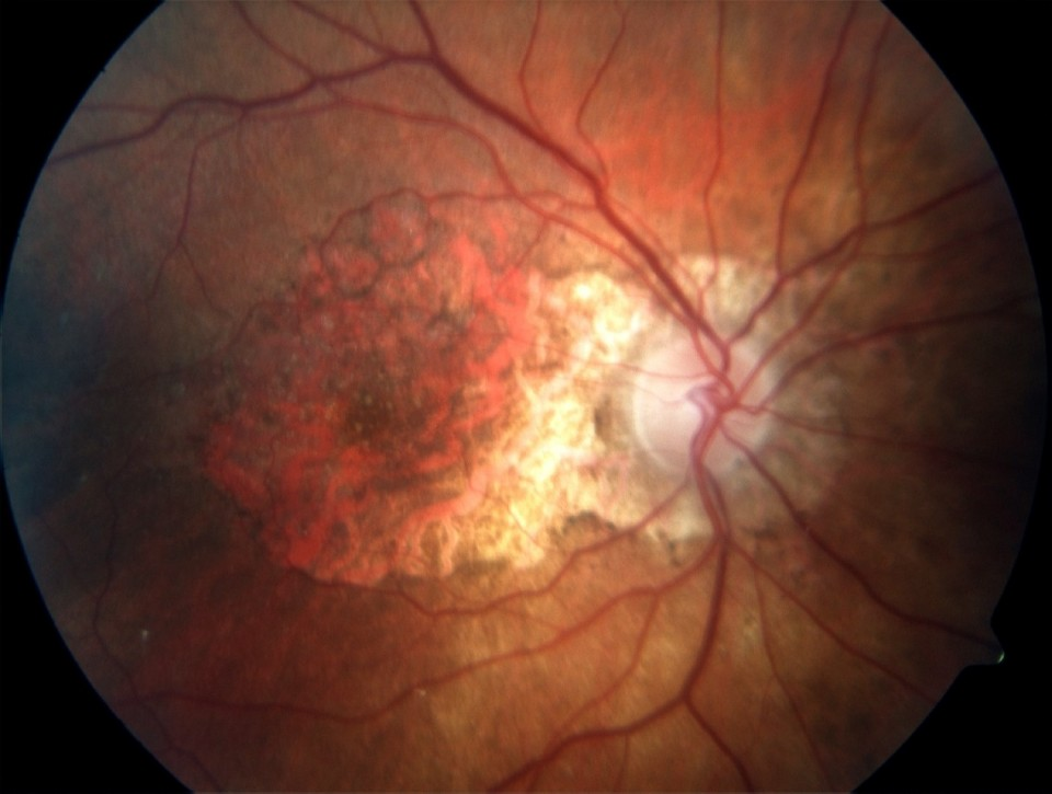 Dry Age Macular Degeneration