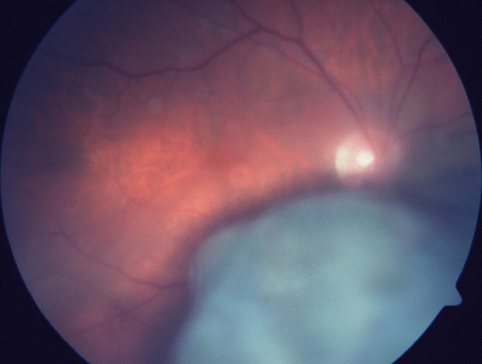 Melanoma Intravenous Fluorescein Angiography