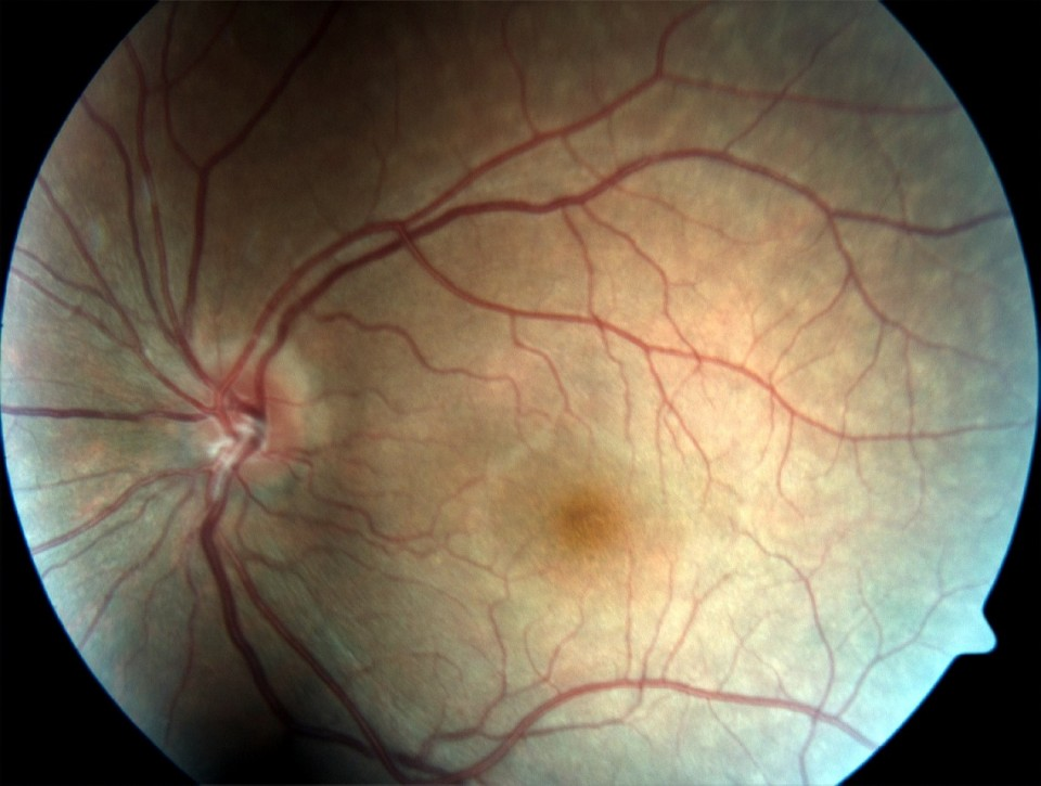 Swollen Optic Nerve